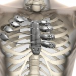 Cancer patient receives 3D printed ribs in world first surgery