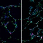 Stem cells grown into 3-D lung-in-a-dish